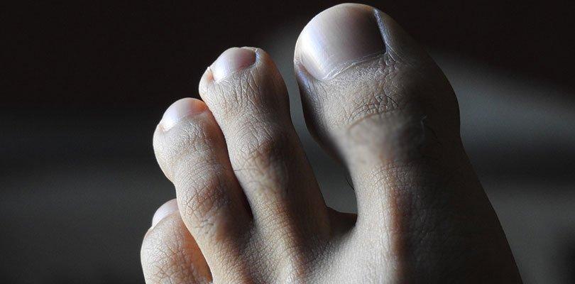 Ayakkabı kokusuna etkili çözüm