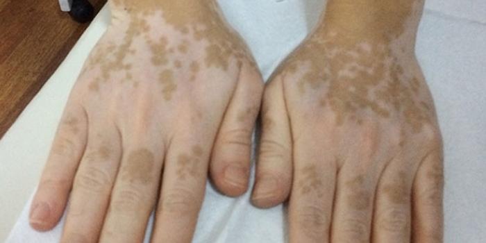 Vitiligo nasıl geçer
